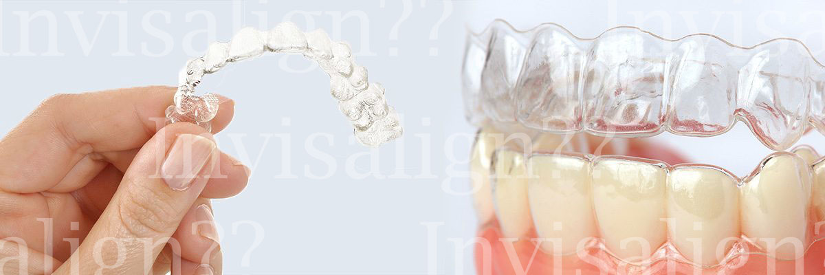 Chicago Does Invisalign® Really Work?