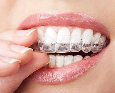 Does Invisalign Really Work?